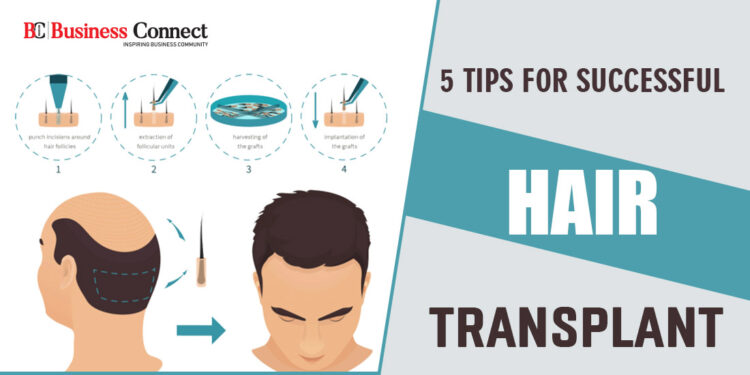 5 Tips for Successful Hair transplant